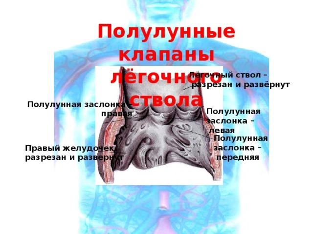 Полулунные клапаны лёгочного ствола Лёгочный ствол –  разрезан и развёрнут Полулунная заслонка –  правая Полулунная заслонка –  левая Полулунная заслонка –  передняя Правый желудочек разрезан и развернут