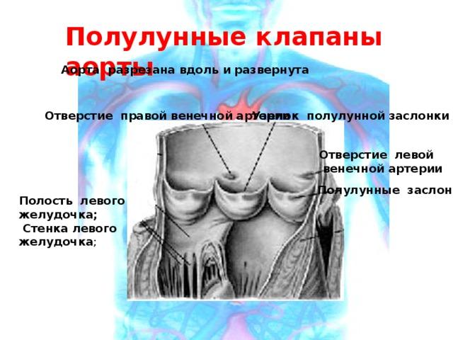 Полулунные клапаны аорты Аорта разрезана вдоль и развернута Отверстие правой венечной артерии Узелок полулунной заслонки Отверстие левой  венечной артерии Полулунные заслонки Полость левого желудочка;  Стенка левого желудочка ;
