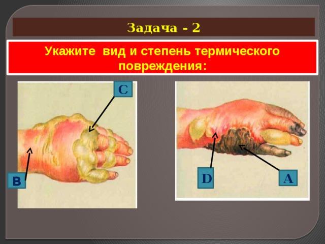 Задача - 2 Укажите вид и степень термического повреждения: C  D A  B