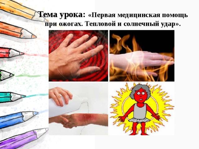 Тема урока: «Первая медицинская помощь при ожогах. Тепловой и солнечный удар».