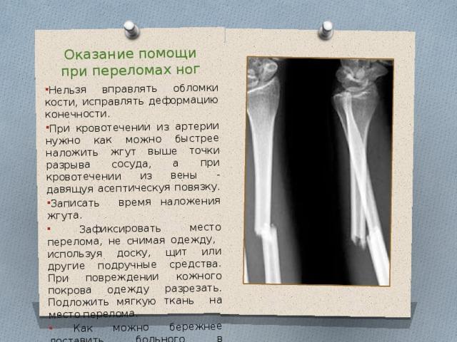 Оказание помощи при переломах ног Нельзя вправлять обломки кости, исправлять деформацию конечности. При кровотечении из артерии нужно как можно быстрее наложить жгут выше точки разрыва сосуда, а при кровотечении из вены - давящуя асептическуя повязку. Записать время наложения жгута.  Зафиксировать место перелома, не снимая одежду, используя доску, щит или другие подручные средства. При повреждении кожного покрова одежду разрезать. Подложить мягкую ткань на место перелома.  Как можно бережнее доставить больного в медучреждение.
