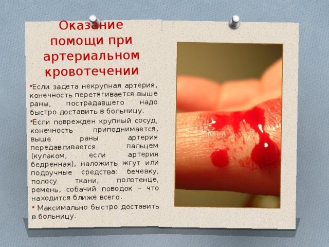 Оказание помощи при артериальном кровотечении Если задета некрупная артерия, конечность перетягивается выше раны, пострадавшего надо быстро доставить в больницу. Если поврежден крупный сосуд, конечность приподнимается, выше раны артерия передавливается пальцем (кулаком, если артерия бедренная), наложить жгут или подручные средства: бечевку, полосу ткани, полотенце, ремень, собачий поводок – что находится ближе всего.  Максимально быстро доставить в больницу.