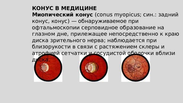 КОНУС В МЕДИЦИНЕ Миопический конус (conus myopicus; син.: задний конус, конус)— обнаруживаемое при офтальмоскопии серповидное образование на глазном дне, прилежащее непосредственно к краю диска зрительного нерва; наблюдается при близорукости в связи с растяжением склеры и атрофией сетчатки и сосудистой оболочки вблизи диска.