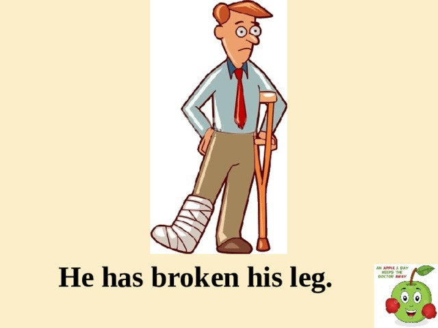He has broken his leg.