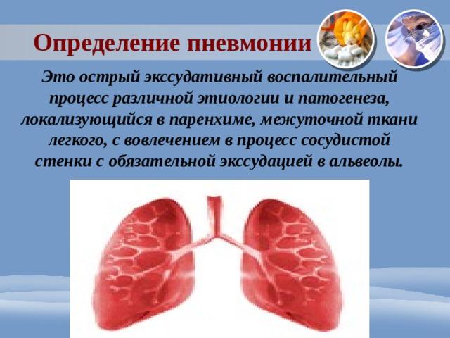 Определение пневмонии Это острый экссудативный воспалительный процесс различной этиологии и патогенеза, локализующийся в паренхиме, межуточной ткани легкого, с вовлечением в процесс сосудистой стенки с обязательной экссудацией в альвеолы.
