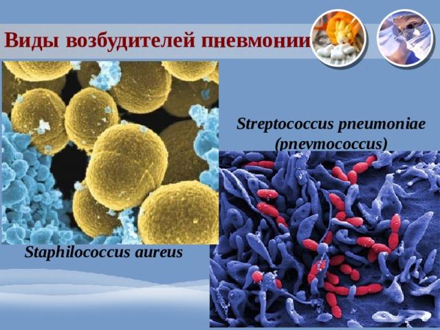 Виды возбудителей пневмонии Streptococcus pneumoniae (pnevmococcus) Staphilococcus aureus