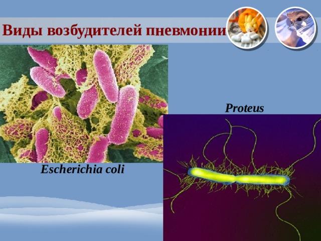 Виды возбудителей пневмонии Proteus Escherichia coli