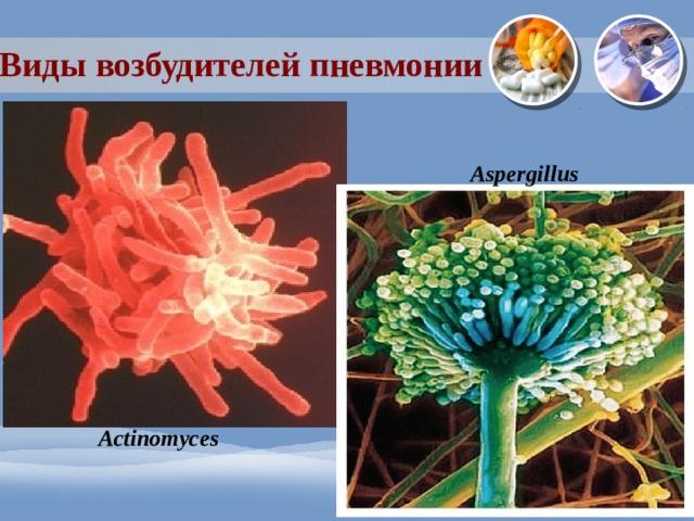 Виды возбудителей пневмонии Aspergillus Actinomyces