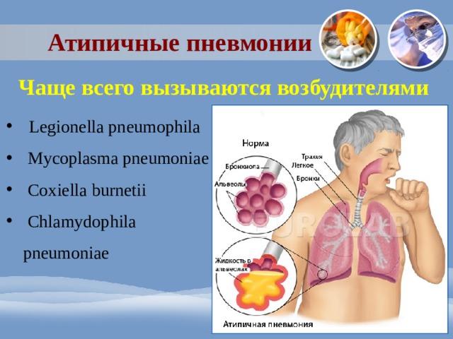 Атипичные пневмонии Чаще всего вызываются возбудителями Legionella pneumophila  Mycoplasma pneumoniae  Coxiella burnetii  Chlamydophila pneumoniae