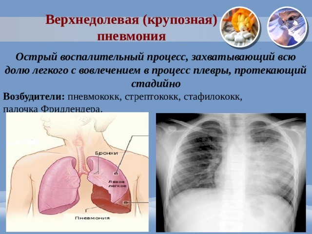 Верхнедолевая (крупозная) пневмония Острый воспалительный процесс, захватывающий всю долю легкого с вовлечением в процесс плевры, протекающий стадийно Возбудители: пневмококк, стрептококк, стафилококк, палочка Фридлендера.