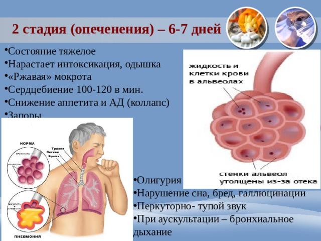 2 стадия (опеченения) – 6-7 дней Состояние тяжелое Нарастает интоксикация, одышка «Ржавая» мокрота Сердцебиение 100-120 в мин. Снижение аппетита и АД (коллапс) Запоры Олигурия Нарушение сна, бред, галлюцинации Перкуторно- тупой звук При аускультации – бронхиальное дыхание