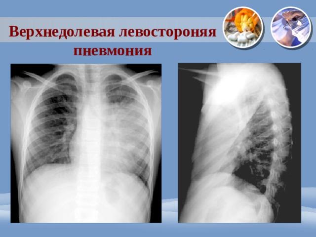 Верхнедолевая левостороняя пневмония