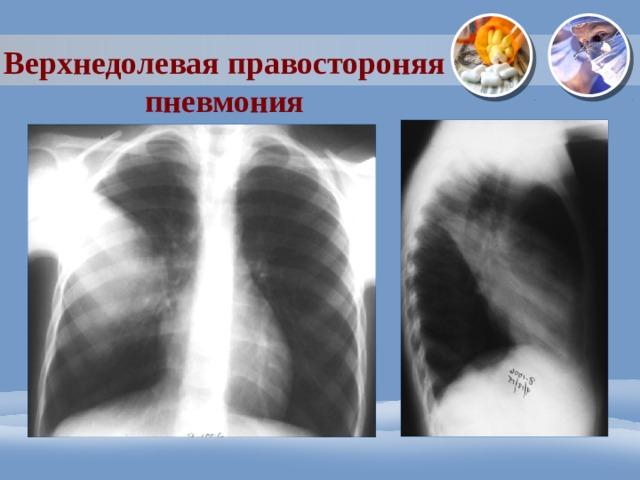 Верхнедолевая правостороняя пневмония