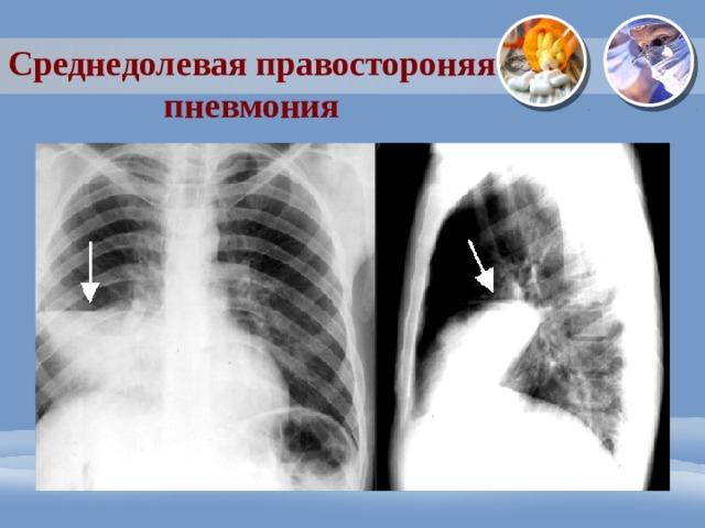 Среднедолевая правостороняя пневмония