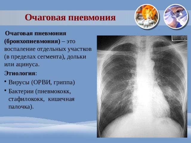 Очаговая пневмония    Очаговая пневмония (бронхопневмония) – это воспаление отдельных участков (в пределах сегмента), дольки или ацинуса. Этиология : Вирусы (ОРВИ, гриппа) Бактерии (пневмококк, стафилококк, кишечная палочка).