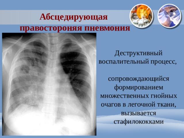 Абсцедирующая правостороняя пневмония Деструктивный воспалительный процесс, сопровождающийся формированием множественных гнойных очагов в легочной ткани , вызывается стафилококками