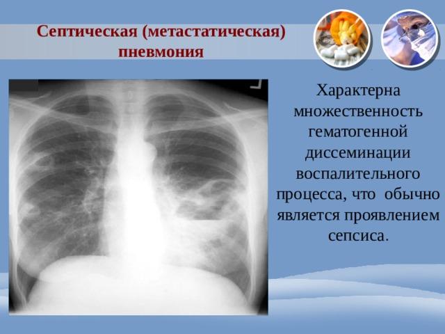 Септическая (метастатическая) пневмония Характерна множественность гематогенной диссеминации воспалительного процесса, что обычно является проявлением сепсиса .