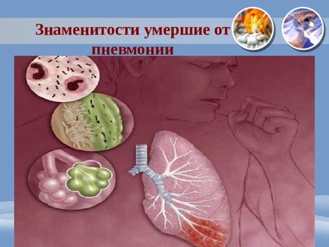 Знаменитости умершие от пневмонии
