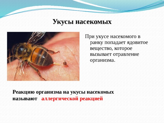Укусы насекомых При укусе насекомого в ранку попадает ядовитое вещество, которое вызывает отравление организма.  Реакцию организма на укусы насекомых называют аллергической реакцией