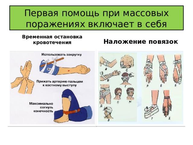 Первая помощь при массовых поражениях включает в себя Временная остановка кровотечения Наложение повязок