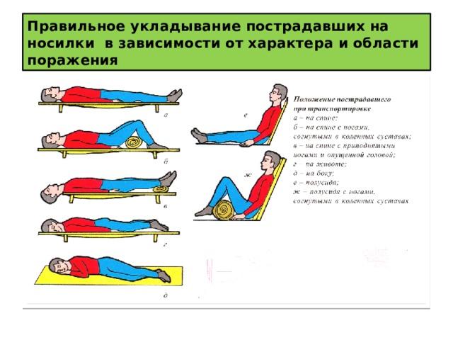 Правильное укладывание пострадавших на носилки в зависимости от характера и области поражения