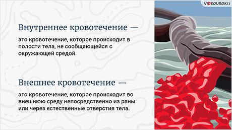 Учимся оказывать первую помощь при кровотечениях